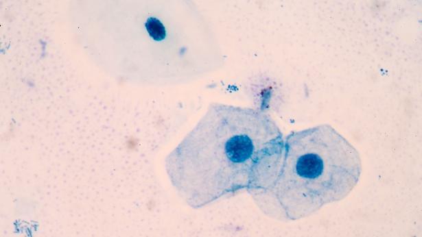 THINPrep, il Pap Test liquido