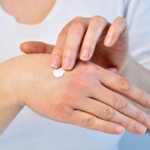trattamento-della-dermatite-atopica-come-si-cura