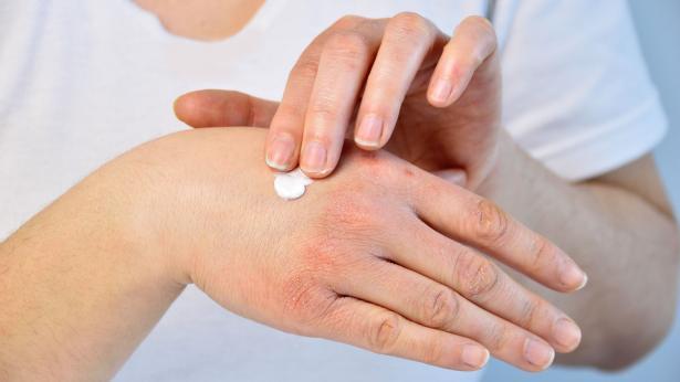 Trattamento della dermatite atopica: come si cura?