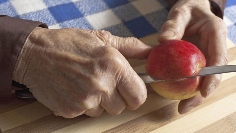 Elenco di cibi da mangiare quando si soffre di artrite reumatoide, questo piatto...