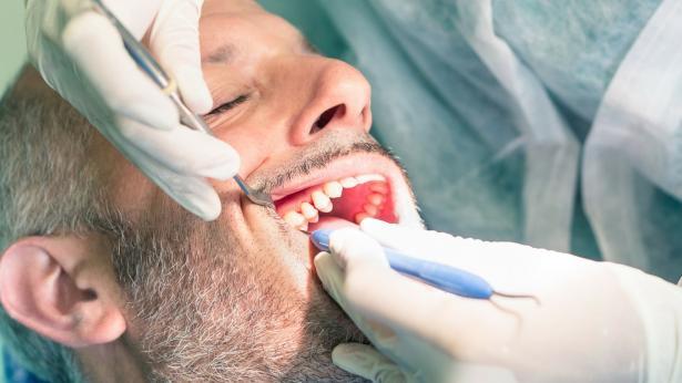 Declino cognitivo negli anziani e cattiva igiene orale?
