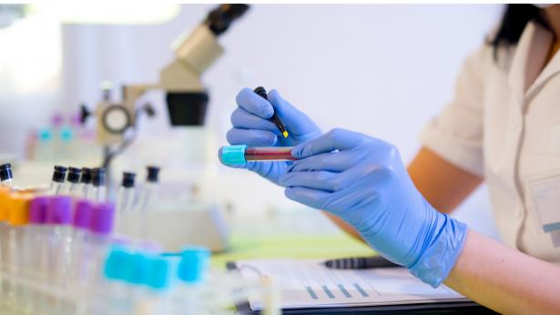Dagli USA arriva Cancer Seek, la biopsia liquida per la diagnosi tumorale