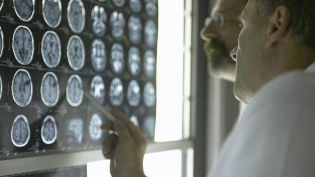 Dagli USA nuovo strumento per analizzare il cervello