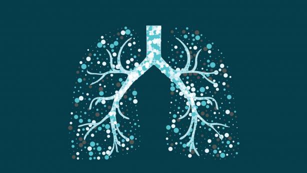 La malattia killer: la giornata dedicata alla lotta contro la tubercolosi