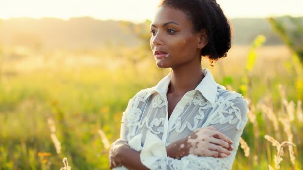 World Vitiligo Day: il 25 giugno giornata dedicata alla vitiligine
