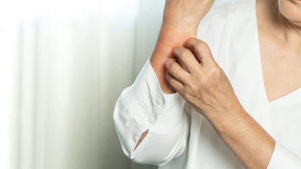 I sintomi del Covid sulla pelle: ecco a cosa fare attenzione