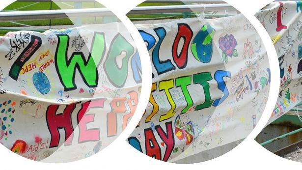 Il 28 luglio è la Giornata contro l'Epatite