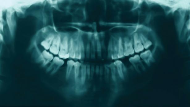 Osteonecrosi delle osse mascellari, online strumento per il monitoraggio