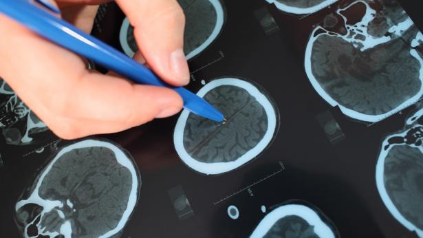 Svolta nella lotta ai tumori del cervello